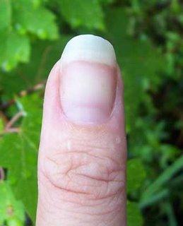 Gardener's Thumb